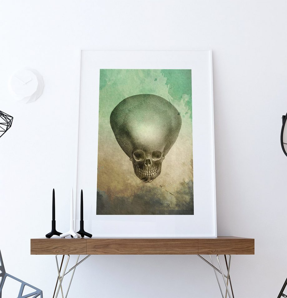 Medical Illustration Hydrocephalus Child's Skull Print Vintage Illustrated Vintage Giclee  Wall Decor on Cotton Canvas and Satin Photo Paper