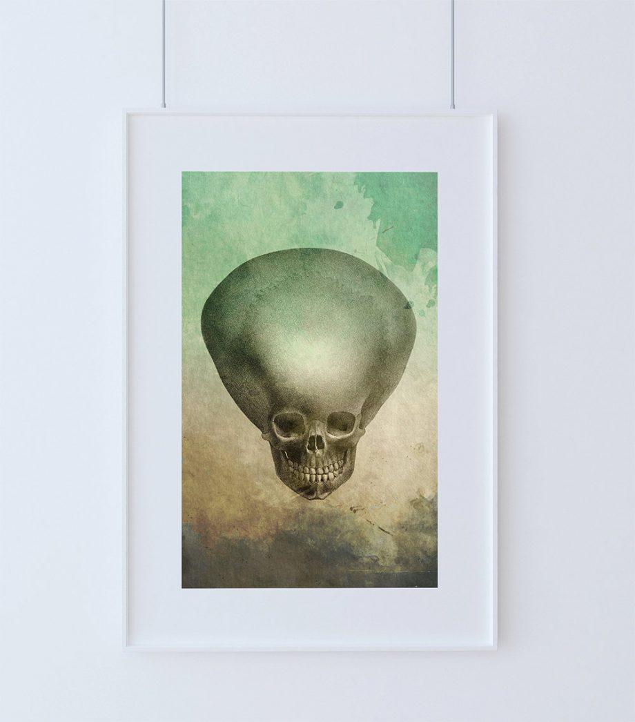 Medical Illustration Hydrocephalus Child's Skull Print Vintage Illustrated Vintage Human Giclee Cotton Canvas or Paper Canvas Wall Decor Art