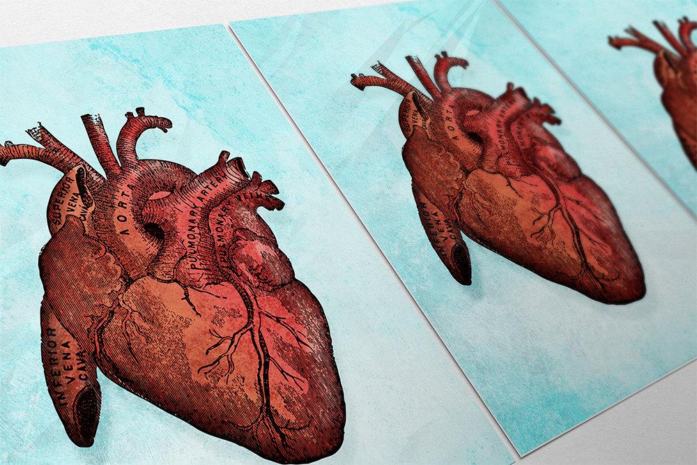 Vintage Victorian Medical Heart Anatomy Print Giclee Anatomy Print ...