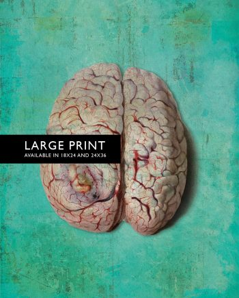 Vintage Victorian Pathology Medical Diseased Brain Print Anatomy Print  18x24 24x36 - Large Giclee Print Cotton Canvas and Satin Photo Paper