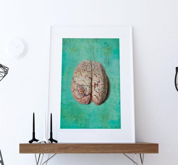 Vintage Victorian Pathology Medical Diseased Brain Print Anatomy Print  18x24 24x36 - Large Giclee Print Cotton Canvas and Satin Photo Paper